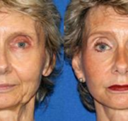 Bio face lift Facial