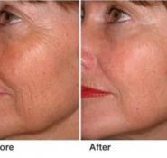 Skin Tightening Facial