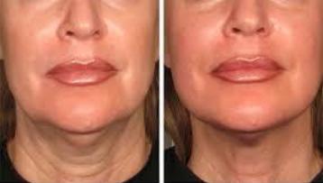 Ultherapy Facial