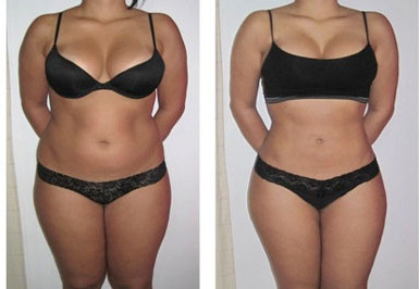 Fat Reduction & Cellulite Treatments
