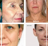 RF Fractional Face Lift Facial
