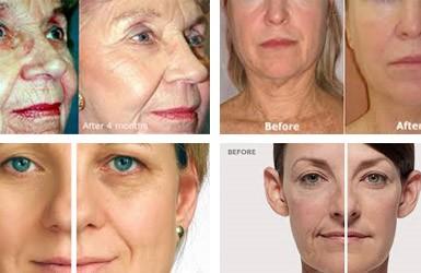 RF Fractional Face Lift Facial