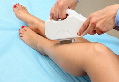 IPL – Permanent Hair Removal