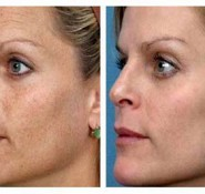 IPL Pigmentation Treatment